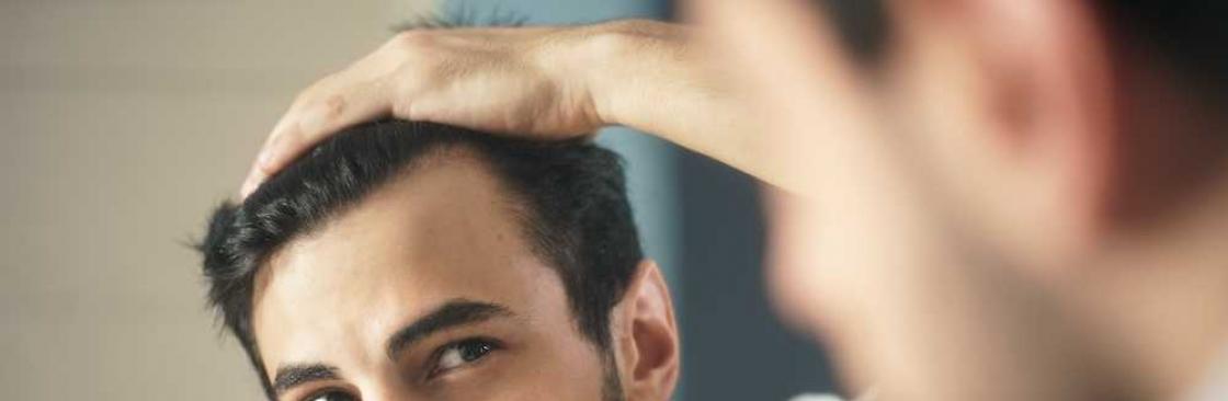 american hairline profile picture